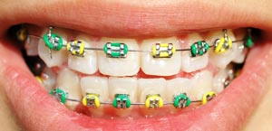 metal braces in Reno