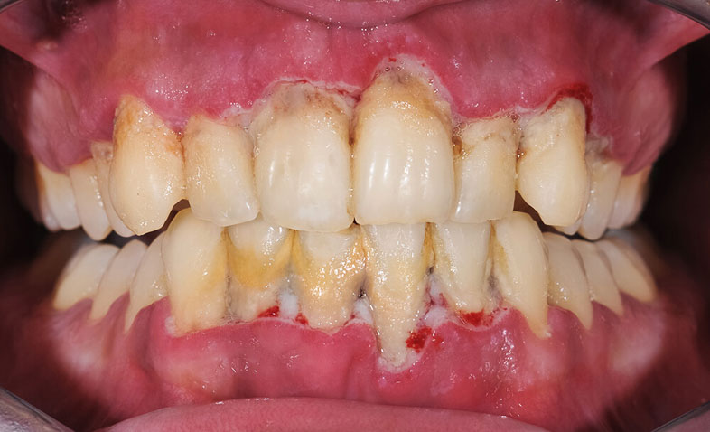 Most Common Signs Of Gum Disease Absolute Dental