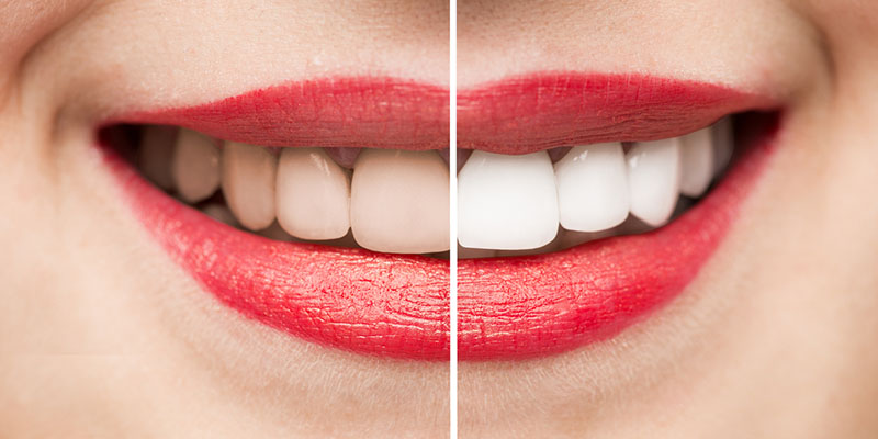 Teeth whitening before and after results