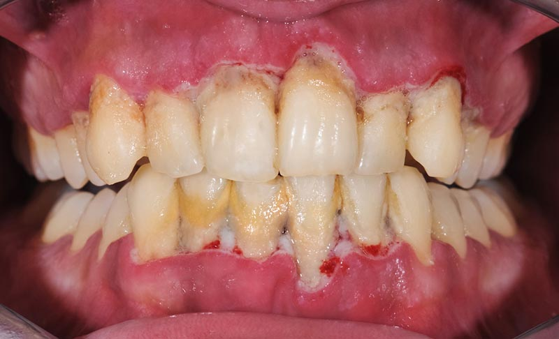 patient with periodontal disease