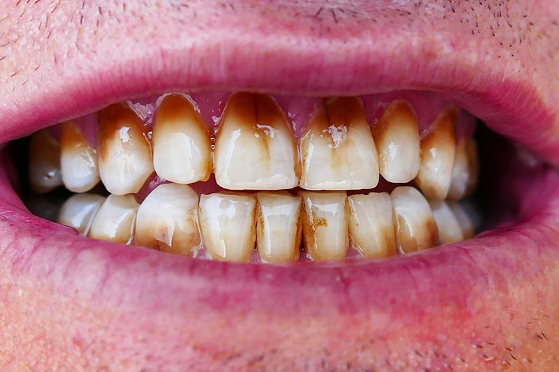 patient with stained teeth