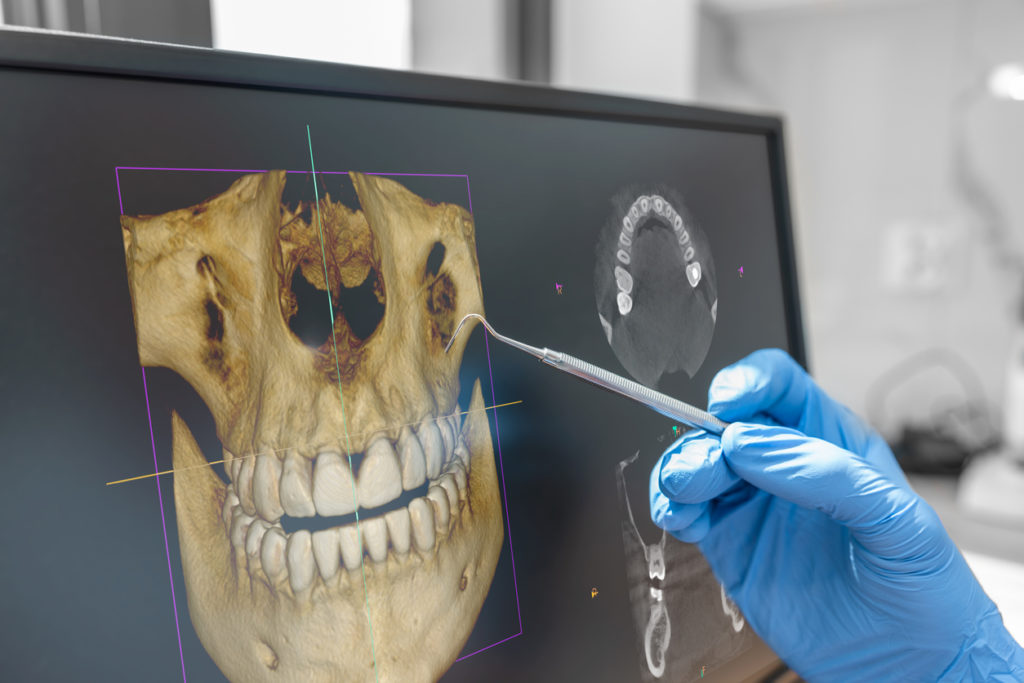 Dental consultation in clinic. Dentist showing 3D tomography image on screen