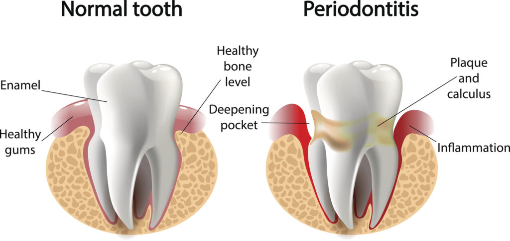 vector image tooth caries disease. Surface caries. Deep caries Pulpitis Periodontitis.
