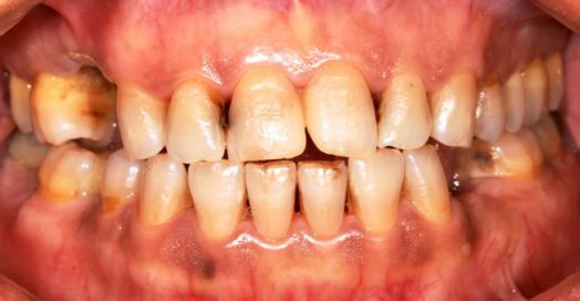 Discolored teeth as a result of methamphetamine use
