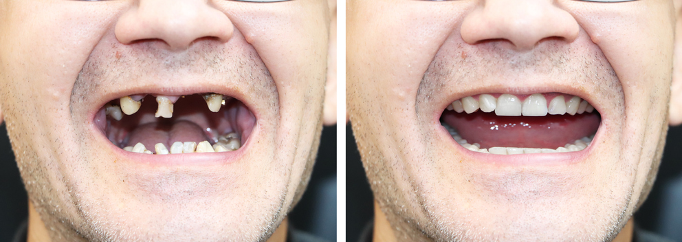 The patient at the orthodontist before and after the installation of dental implants. Tooth loss, decayed teeth, denture, veneers